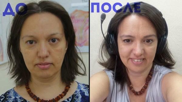 Пилинг Джесснера: отзывы, фото до и после, состав ...