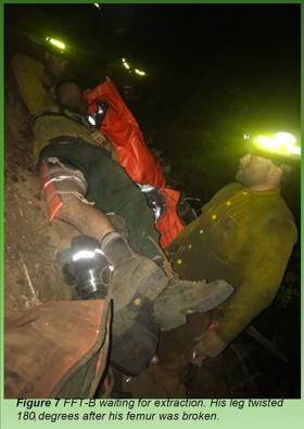 Crew member firefighter with broken femur.