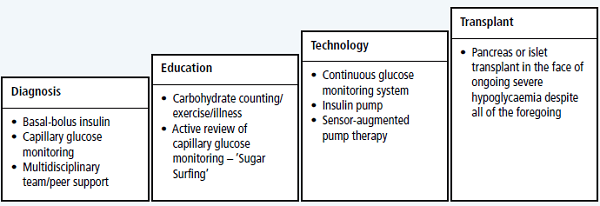 Sensor-augmented pump therapy: review of new NICE
