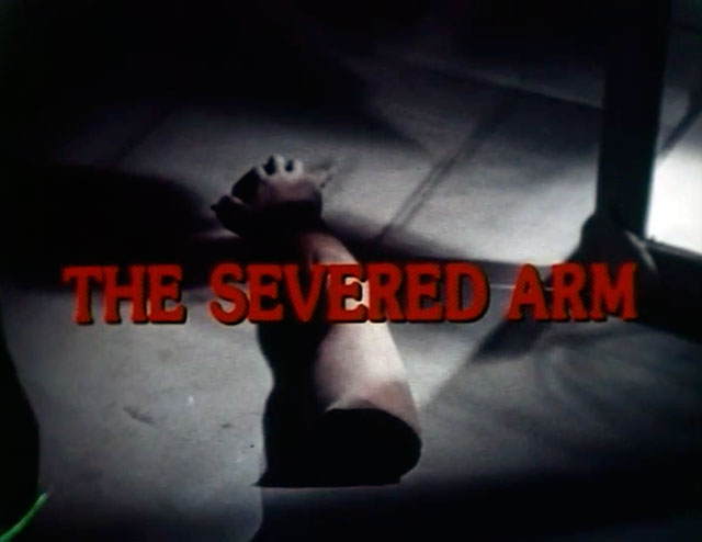 severed-arm