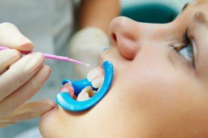 Dental Tooth Sealant Lancaster, Ephrata, New Holland - William Poole