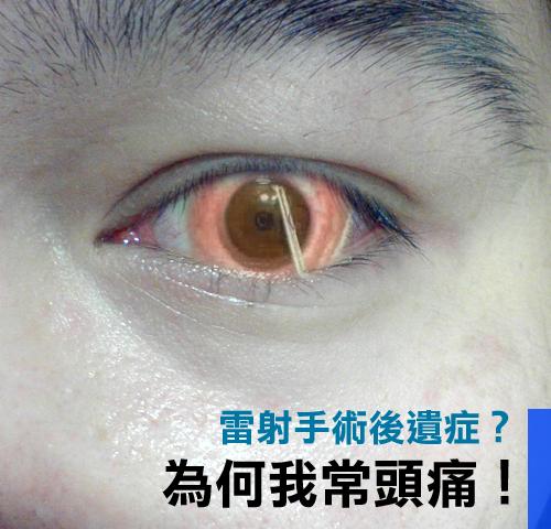 ⊙強烈質疑我的偏頭痛來自我的眼睛雷射手術 – Wil.Liang.tw