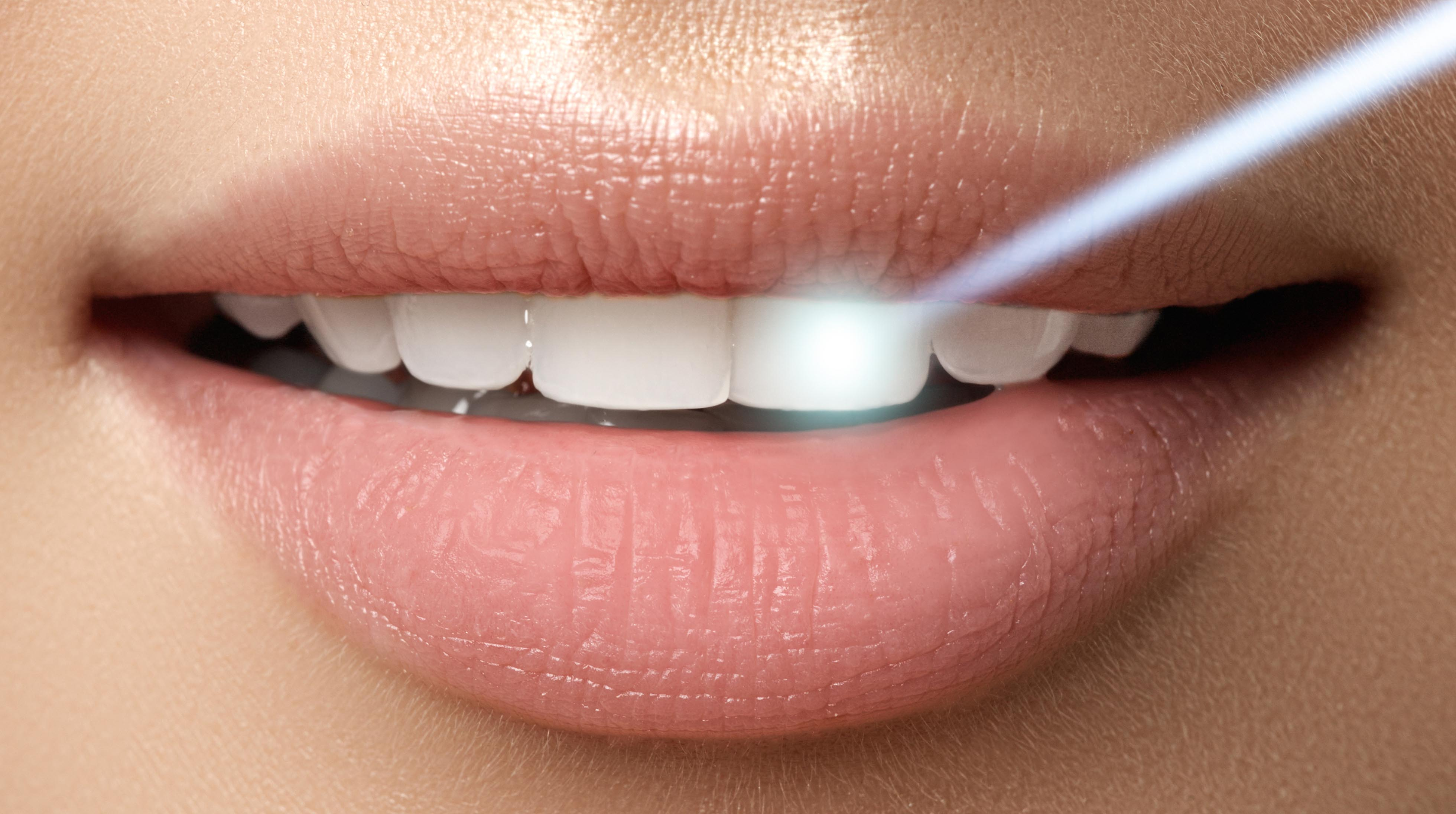 The rise of illegal tooth whitening in Britain