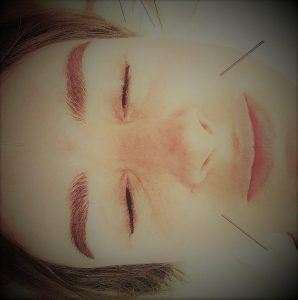 acupuncture needles on the face to improve circulation