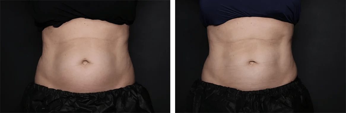 How much does Coolsculpting cost?