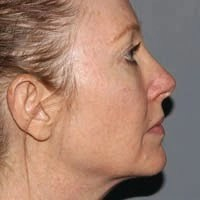 48 Year Old Female 4 Months Post Ultherapy Treatment