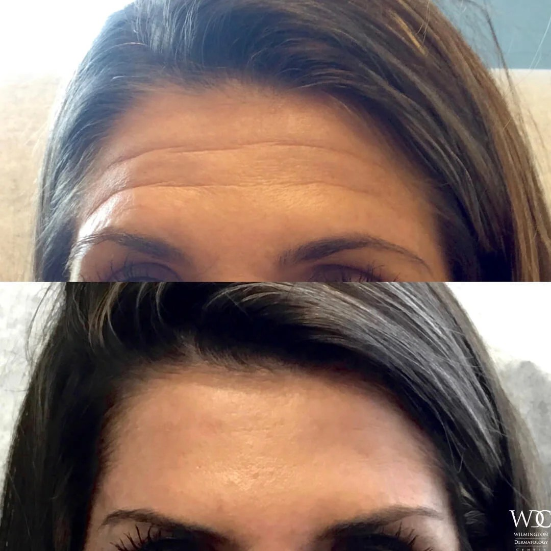 Before and After Look of Botox Treatment