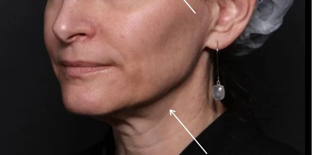 Face Ultherapy in Wilmington
