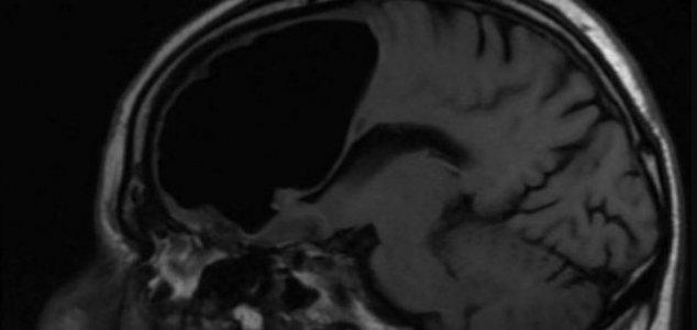 Brain Hole