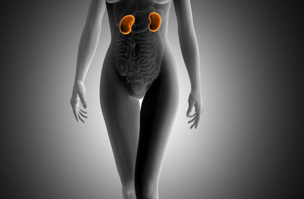 Tecnología contra cálculos renales
