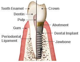 titanium-dental-implant