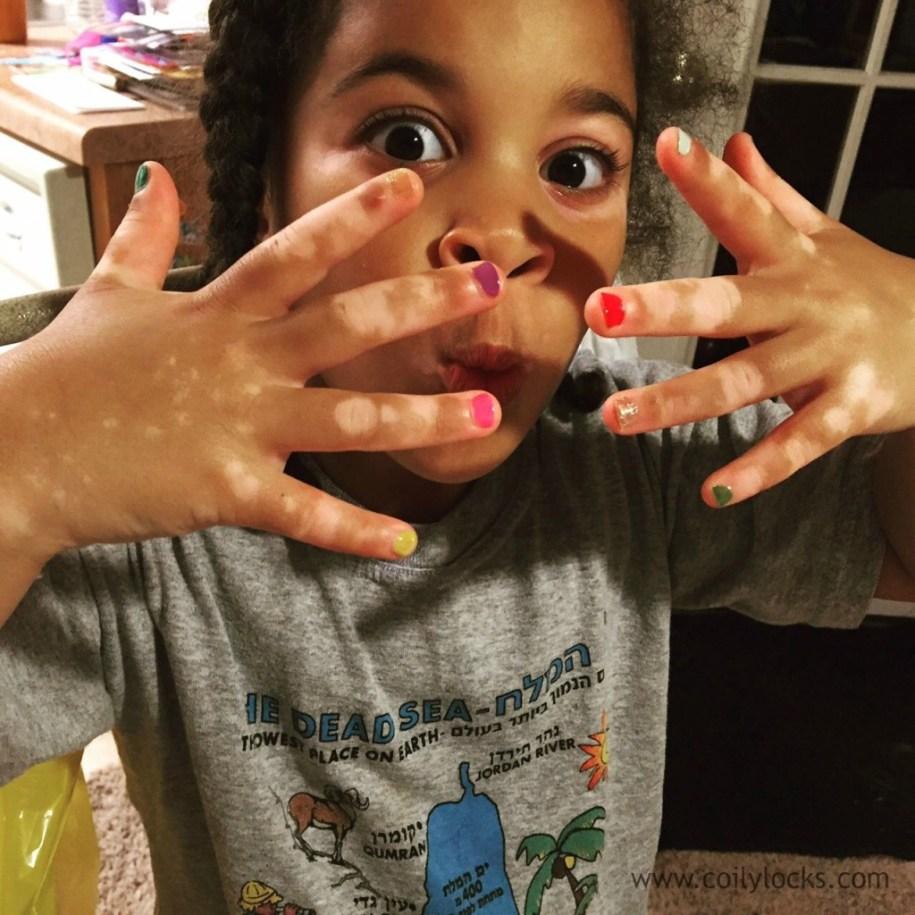 Morgan-vitiligo-beauty-kids-2015