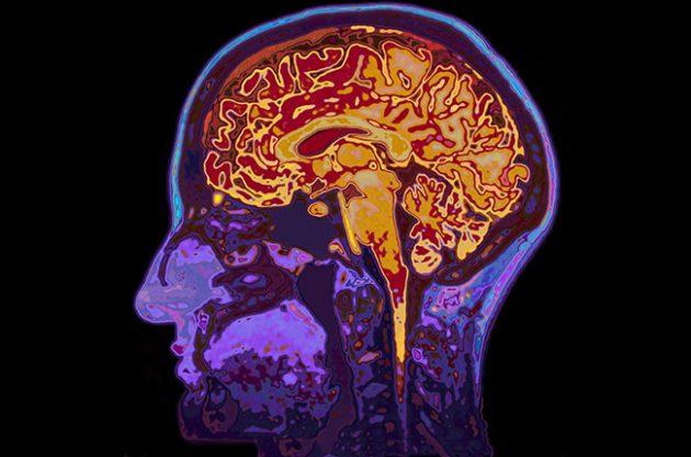 wine dementia, brain scan