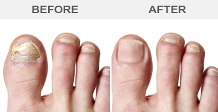 11 Vicks Vaporub Uses - Cure your fungus nails.