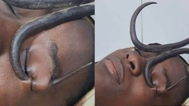 Photo of Girl Rushed To Hospital With Iron Hook In Her Eye