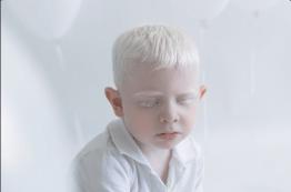 Yulia Taits revela la belleza natural de las personas albinas Captura-de-pantalla-2016-11-23-a-las-4.44.35-p.m.
