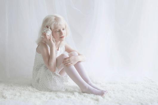 Yulia Taits revela la belleza natural de las personas albinas Captura-de-pantalla-2016-11-23-a-las-4.45.21-p.m.
