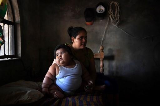 Un caso sin explicación: bebé mexicano con sobrepeso 000_U53FR