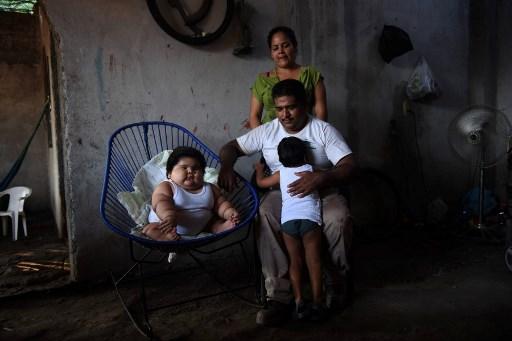Un caso sin explicación: bebé mexicano con sobrepeso 000_U53G7