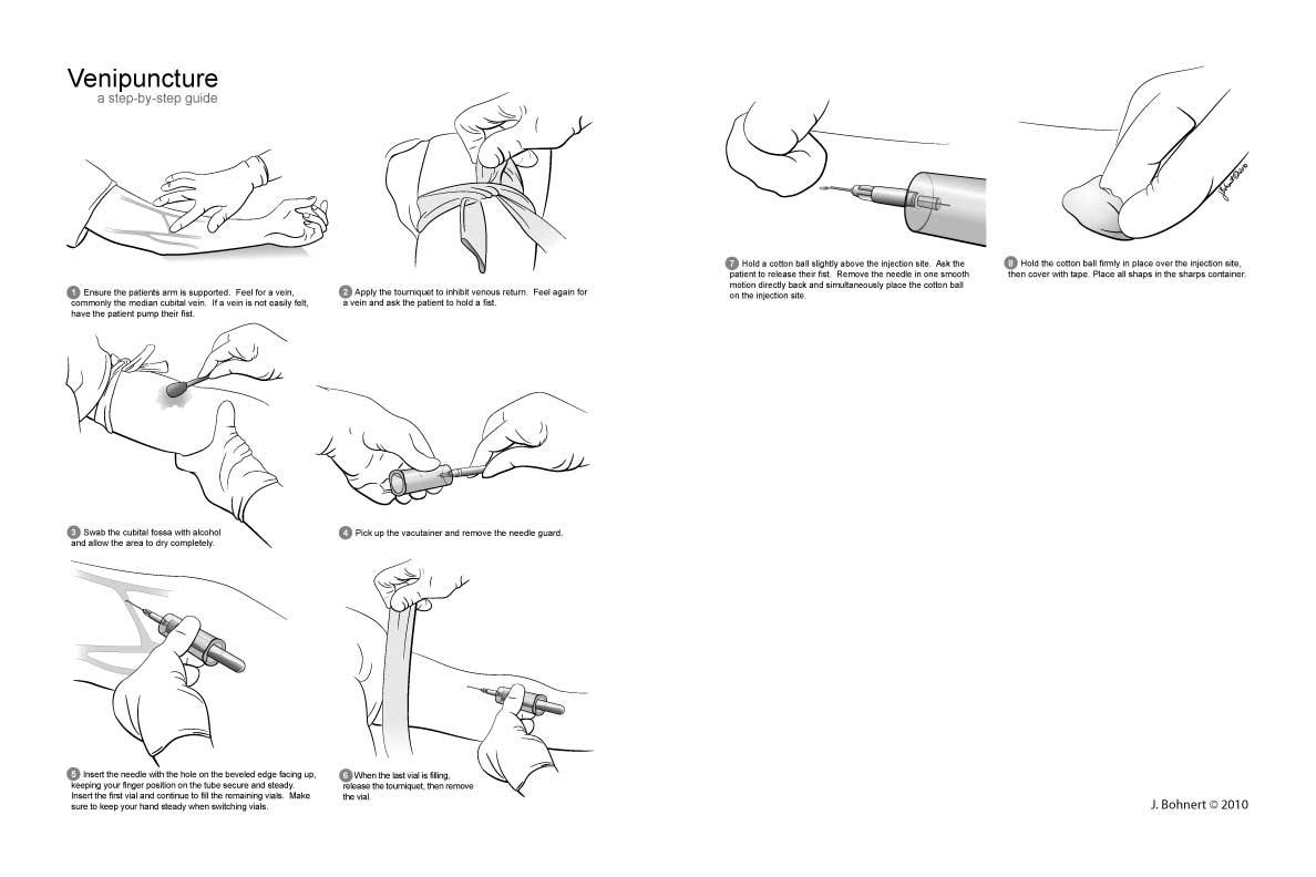 Venipuncture Sites Diagram