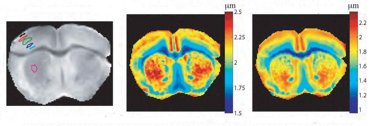 Mapping of size distributions of a mouse's gray matter by quantum-controlled proton MRI. (l) Brain proton MRI; (c) mean cellular size; (r) distribution peak