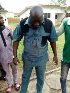 Osun Rerun: PDP Youth Leader Seriously Beaten By Thugs (Photos)