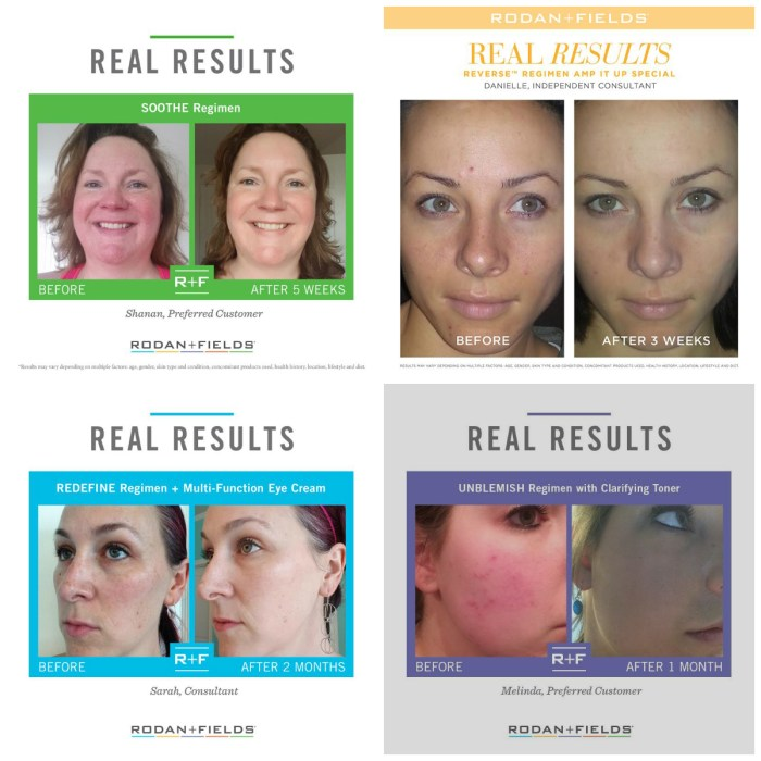 Rodan and Fields skin care