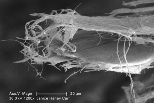 Chrysotilfasern unter dem Rasterelektronenmikroskop