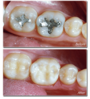 White Fillings - Amalgam free