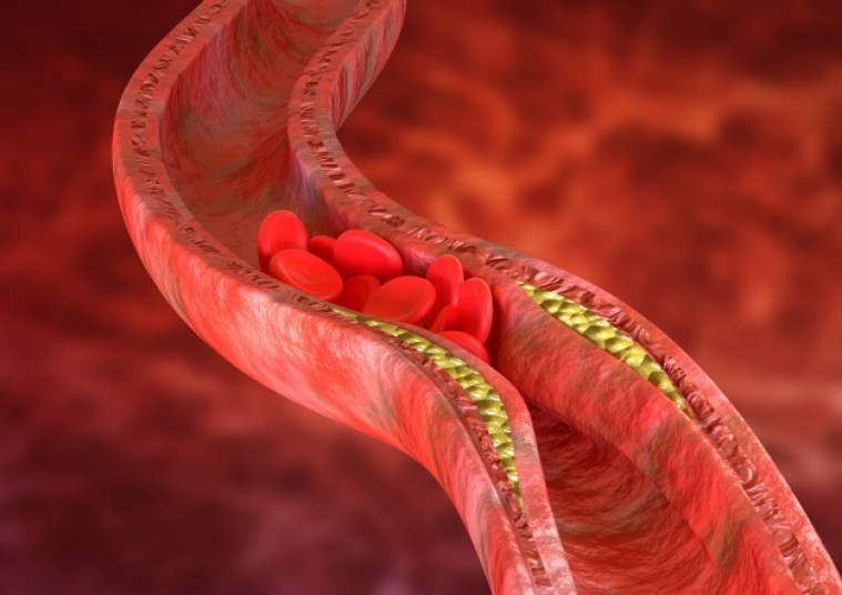 Thickening of blood vessel walls due to the deposition of cholesterol