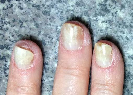 How Long Do Gel Nails Last