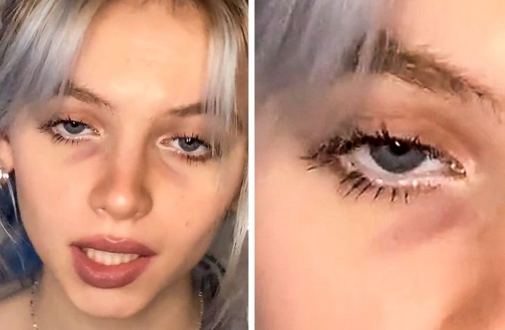 9 Physical Features Nobody Expected to Become Trendy