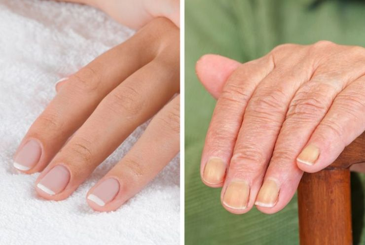 7 Body Parts That Can Give Away Your Age