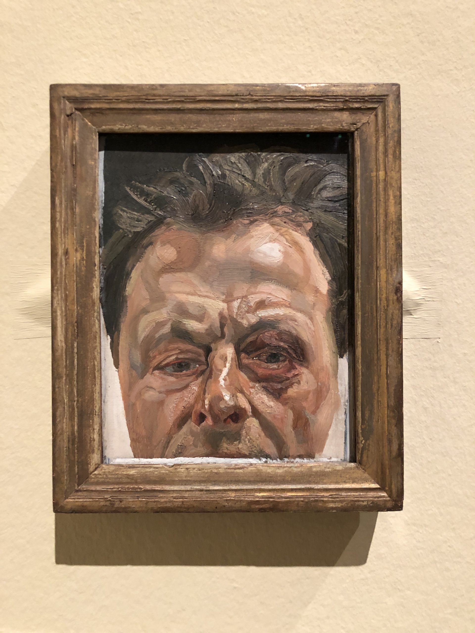 Image of artwork titled Self portrait with black eye by artist Lucian Freud