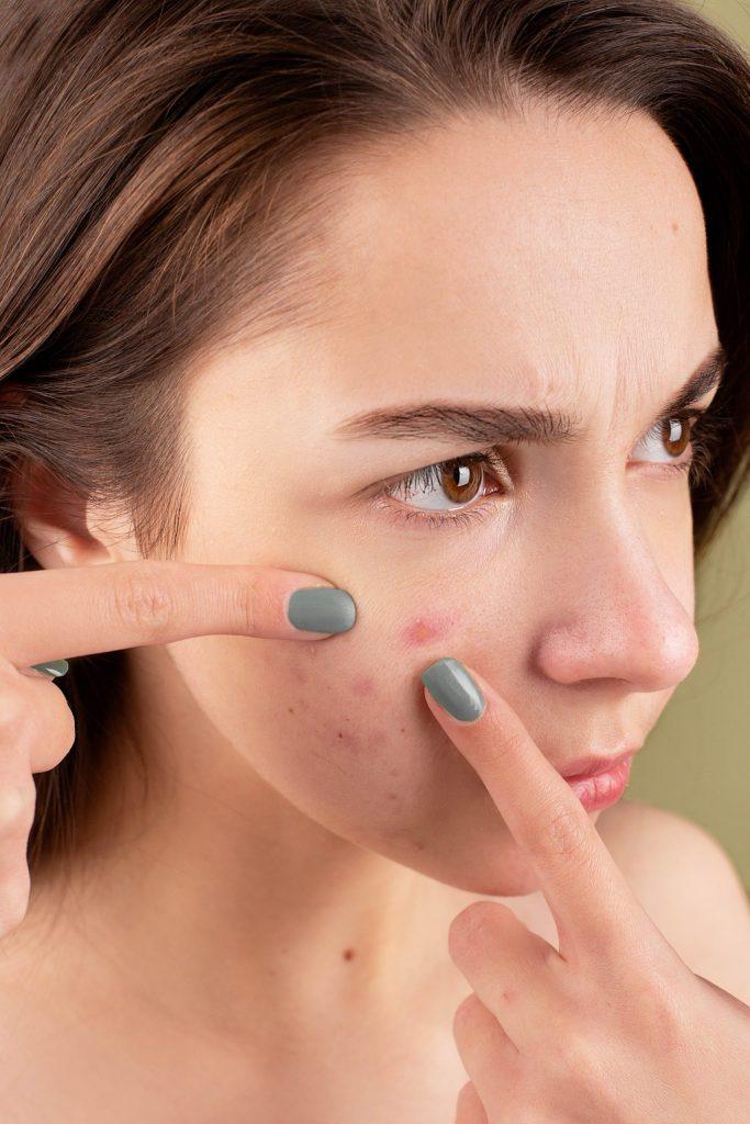 Esto te interesa: ¿A qué edad debes comenzar a cuidar tu piel?
