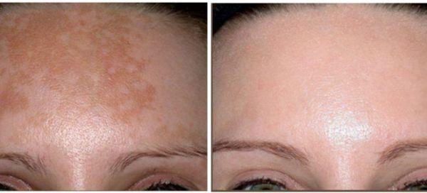 Удаление пигментных пятен на лице лазером. Почему на лице ...