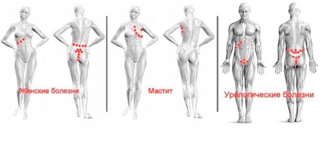 Tratamentul venelor varicoase: indicații, cum este procedura