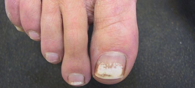 White spots on the toenails cause