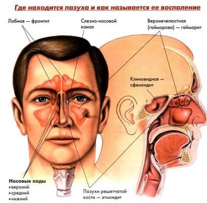Лечение синусита в домашних условиях