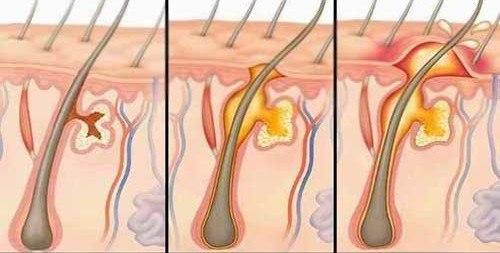 Как лечить фурункул в паху у женщин