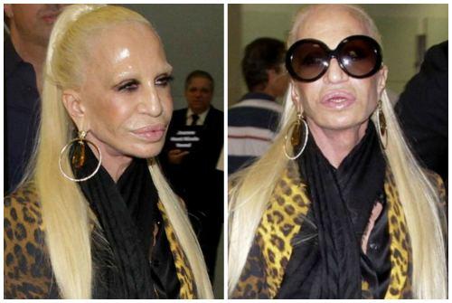 Донателла Версаче- как выглядела звезда до и после ...
