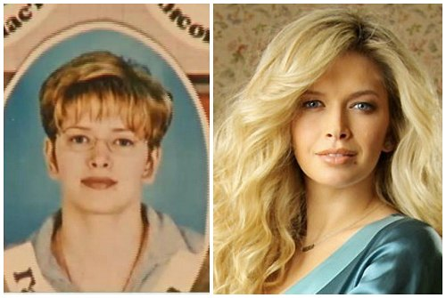 Вера Брежнева до и после пластических операций фото и видео