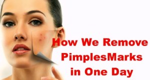 How to Get Rid of Pimple
