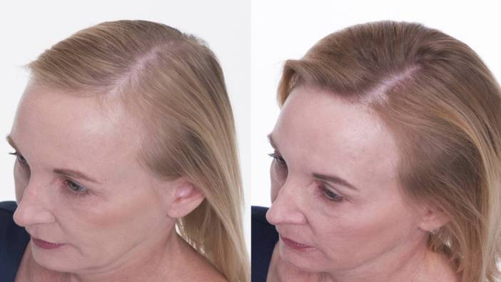 Sharon Hair Regrowth with GenF20 Plus