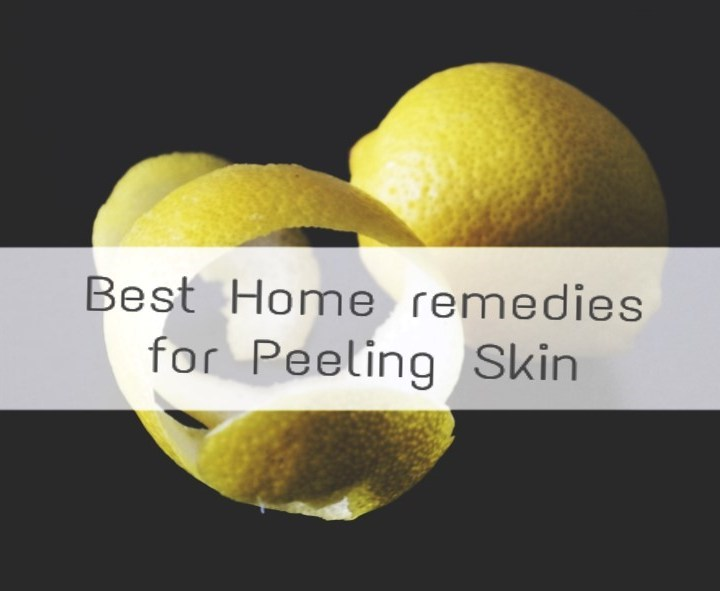 Top 6 easy and best Home remedies for peeling skin