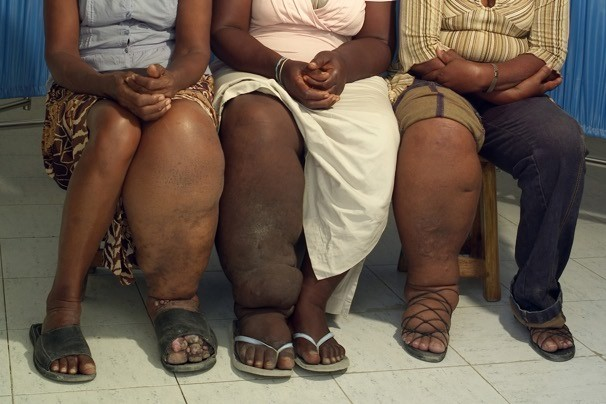 Haiti [Women] take on dreaded disease elephantiasis one mouth at a time