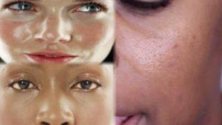 moisturizing-skin