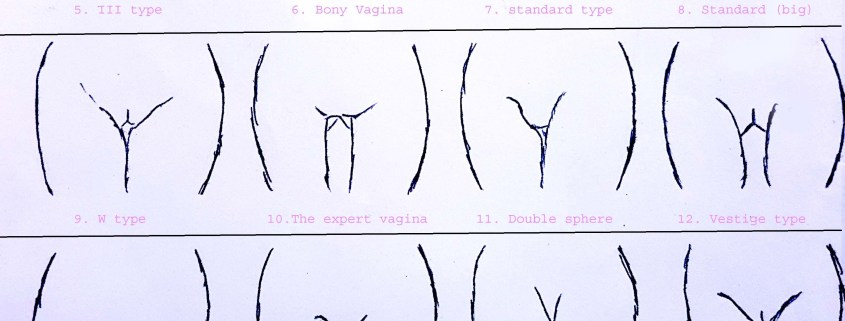 Type Of Vagina Photos 101