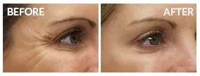 eyes-before-after1