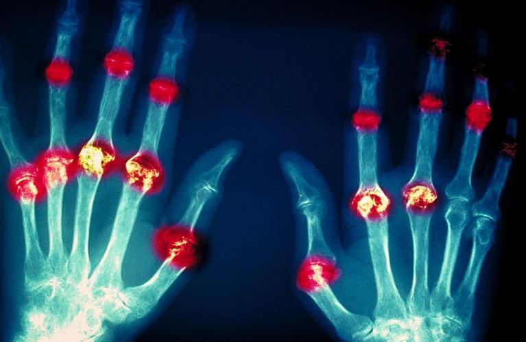ревматоидного артрита